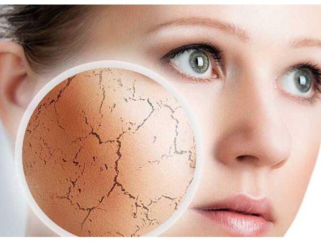 Top sữa rửa mặt dành cho da khô thường được khuyên dùng nhiều nhất hiện nay