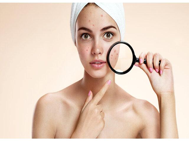 Các bước chăm sóc da mụn đơn giản tại nhà