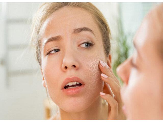 Cách chọn kem dưỡng ẩm cho da khô giúp da ẩm mịn
