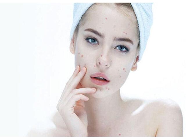 Gợi ý 5 kem trị thâm sau mụn thần kỳ cho làn da đẹp không tỳ vết