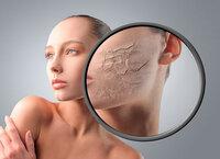 Cách chăm sóc da khô thiếu nước hiệu quả chỉ với 5 bước