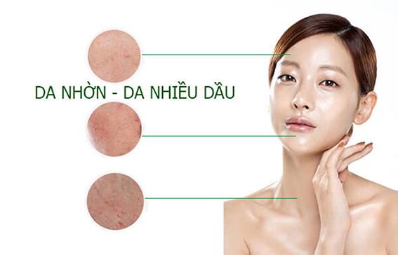 5 Cách chăm sóc da nhờn và lỗ chân lông to giúp giảm mụn, dưỡng sáng