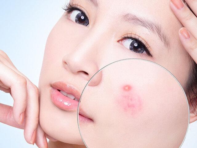 Cách chăm sóc da dầu mụn hiệu quả.