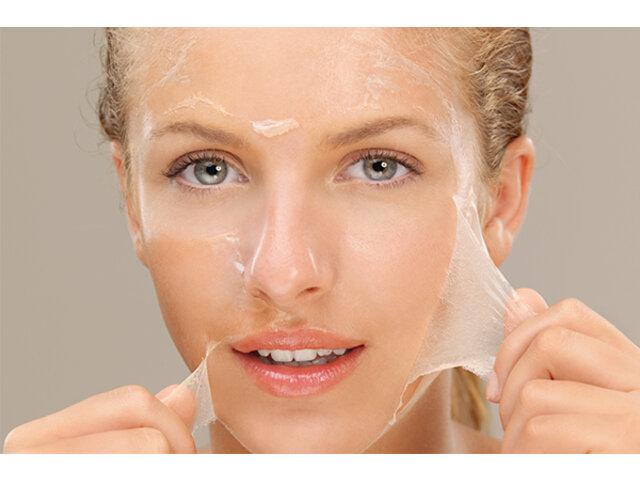 Quy trình dưỡng da đúng chuẩn sau khi Peel trị mụn