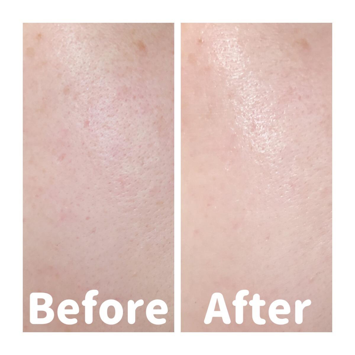 Tinh Chất Chống Nắng Dưỡng Ẩm Nâng Tông Che Khuyết Điểm Sunplay SPF50+ PA++++ Skin Aqua Tone Up UV Essence before after