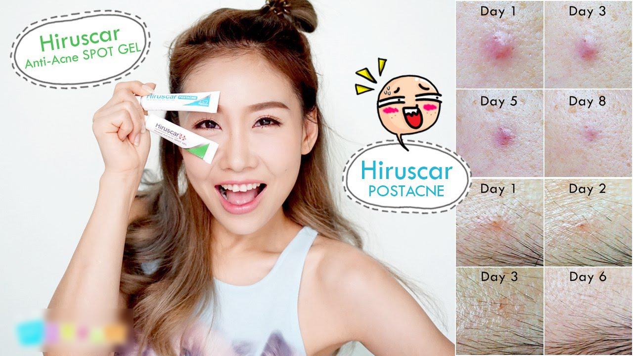 Độ hiệu quả Gel Làm Giảm Mụn Hiruscar Anti Acne Spot Gel+ 10g