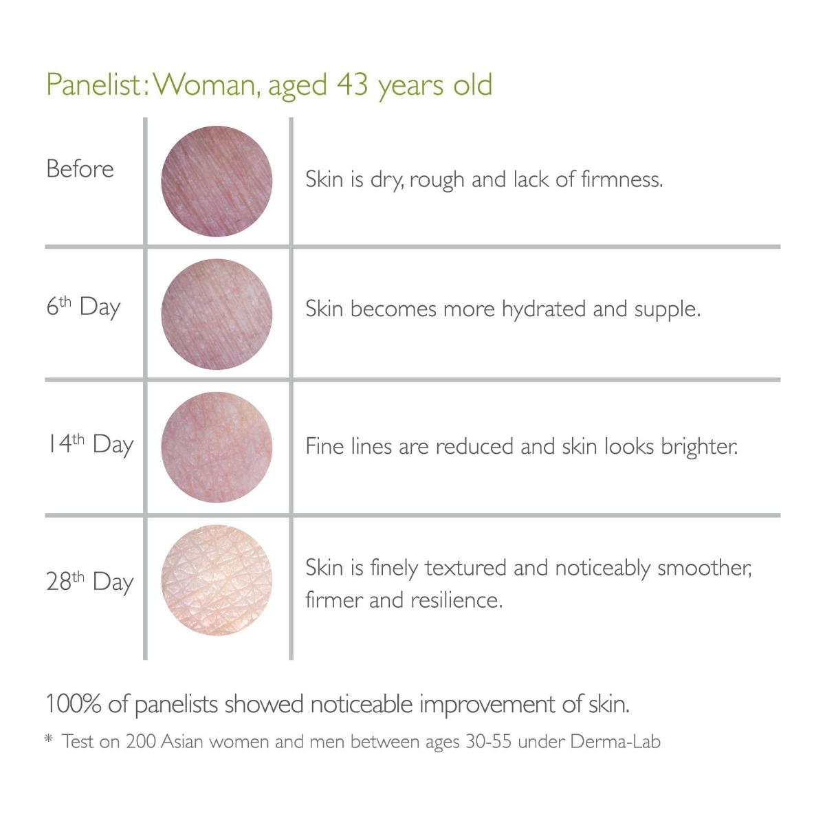 Kết quả thử nghiệm Nước Uống Kinohimitsu Diamond 5300 trên làn da phụ nữ ở độ tuổi 43.