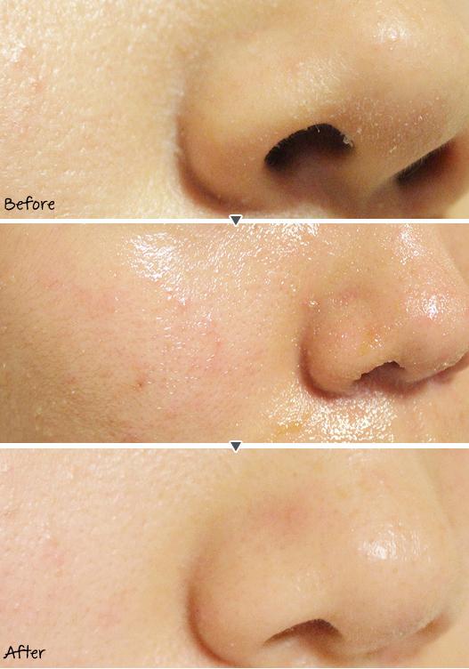 Tẩy Tế Bào Chết Klairs Gentle Black Sugar Facial Polish loại bỏ mụn đầu đen