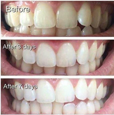 Kem Đánh Răng Làm Sáng Răng Yotuel All in One Intensive Whitening Toothpaste 75ml