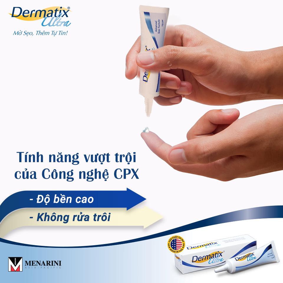 Review kem làm mờ sẹo Dermatix có tốt không? | giamcanlamdep.com.vn