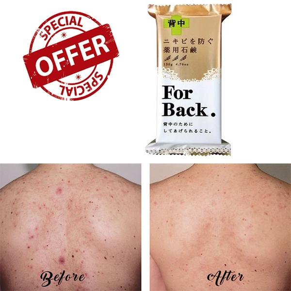 Độ hiệu quả Xà Phòng Làm Giảm Mụn Lưng For Back Medicated Soap 135g