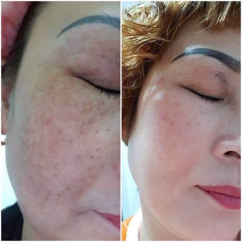 Kem Dưỡng Sáng Da, Mờ Thâm Nám Dongsung Miskos Prestige Whitening Cream 50g an toàn