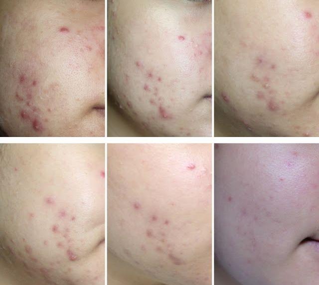 Gel Ngừa Mụn Naris Cosmetic 20g