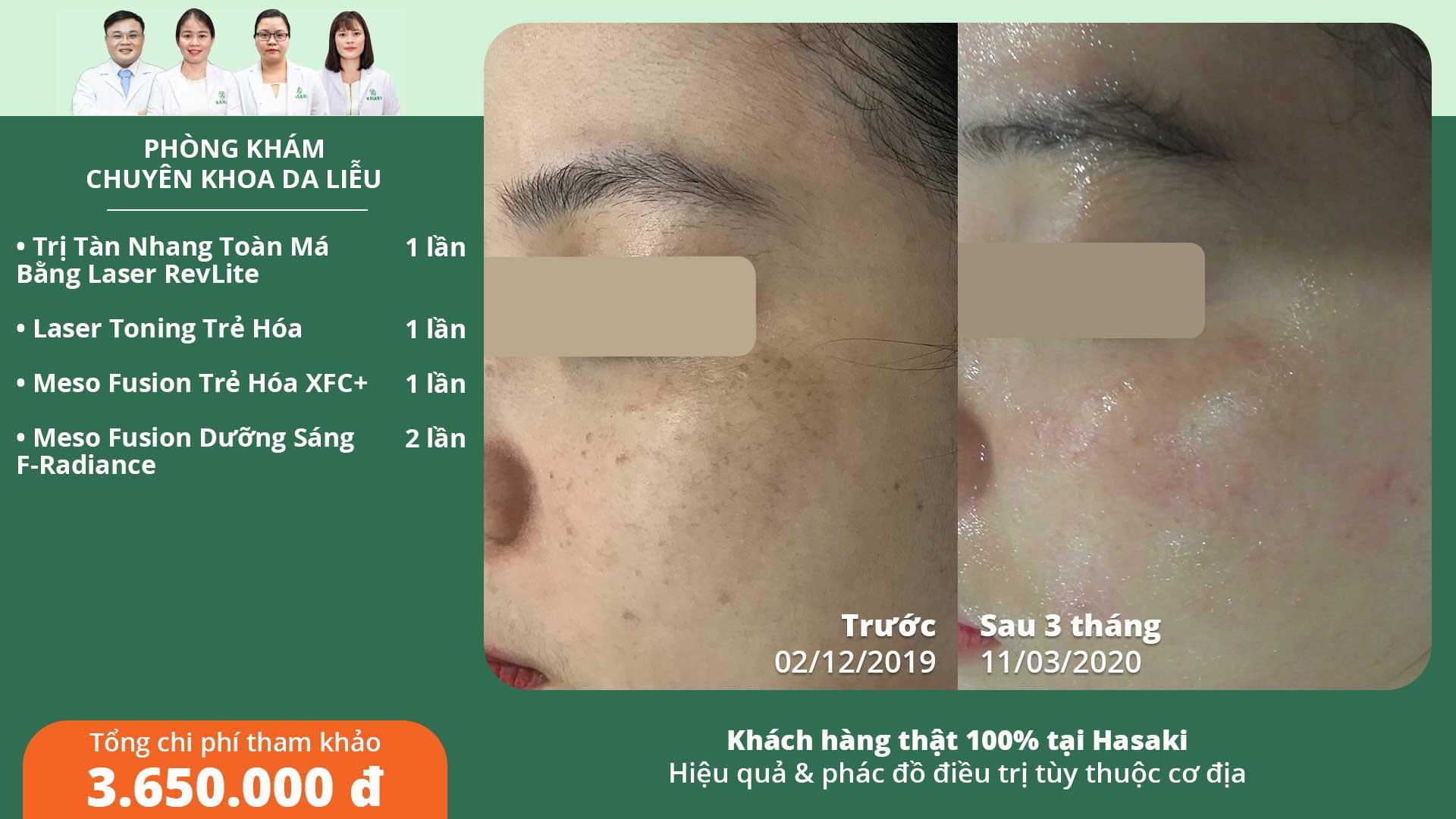Khách hàng điều trị tàn nhang thực tế tại Hasaki