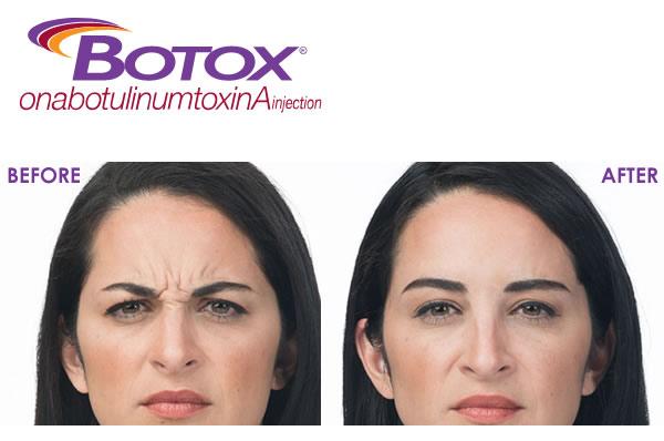 Xóa Nếp Nhăn Với Botox Allergan