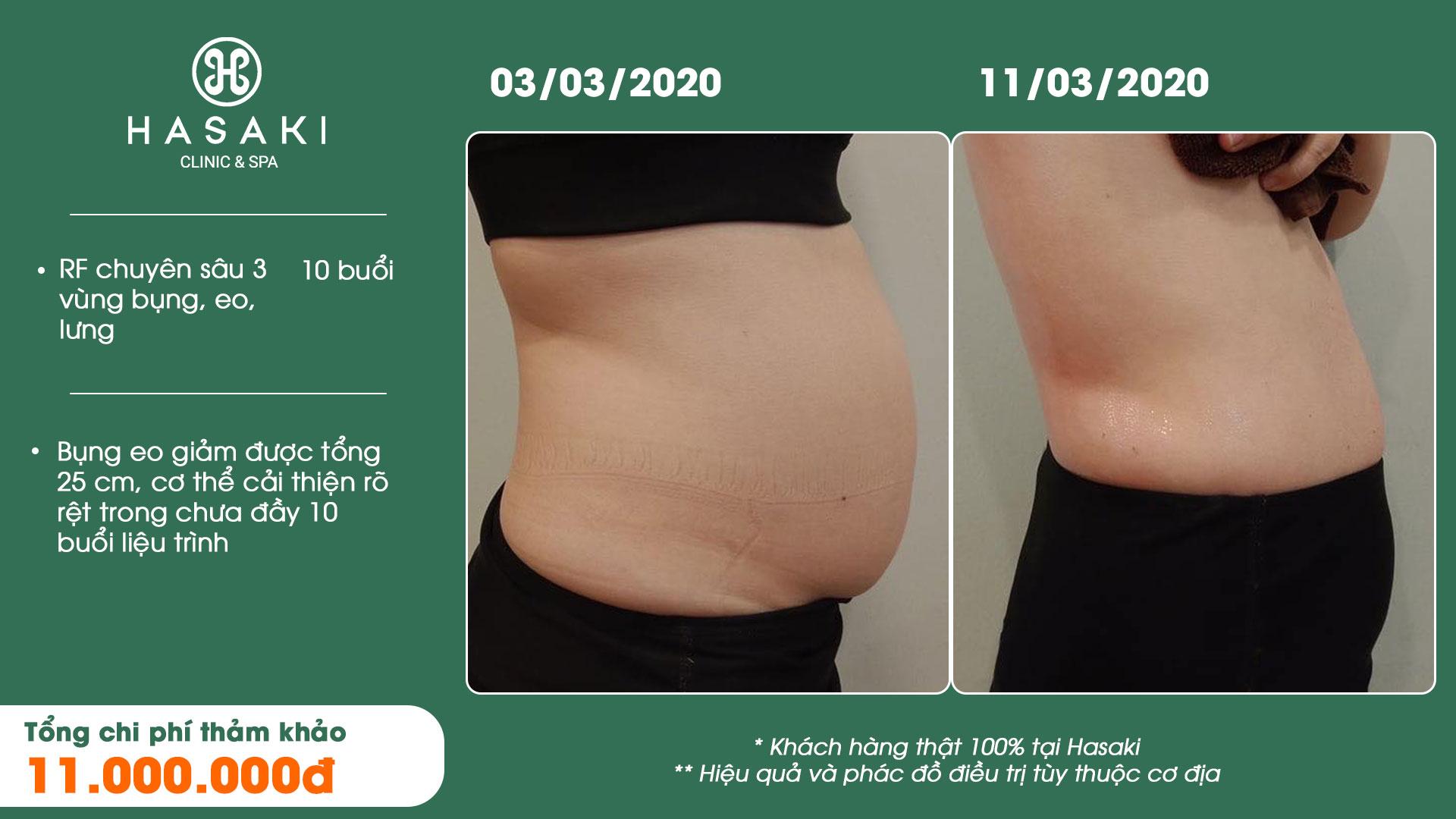 Khách hàng giảm béo nâng cơ thực tế tại Hasaki
