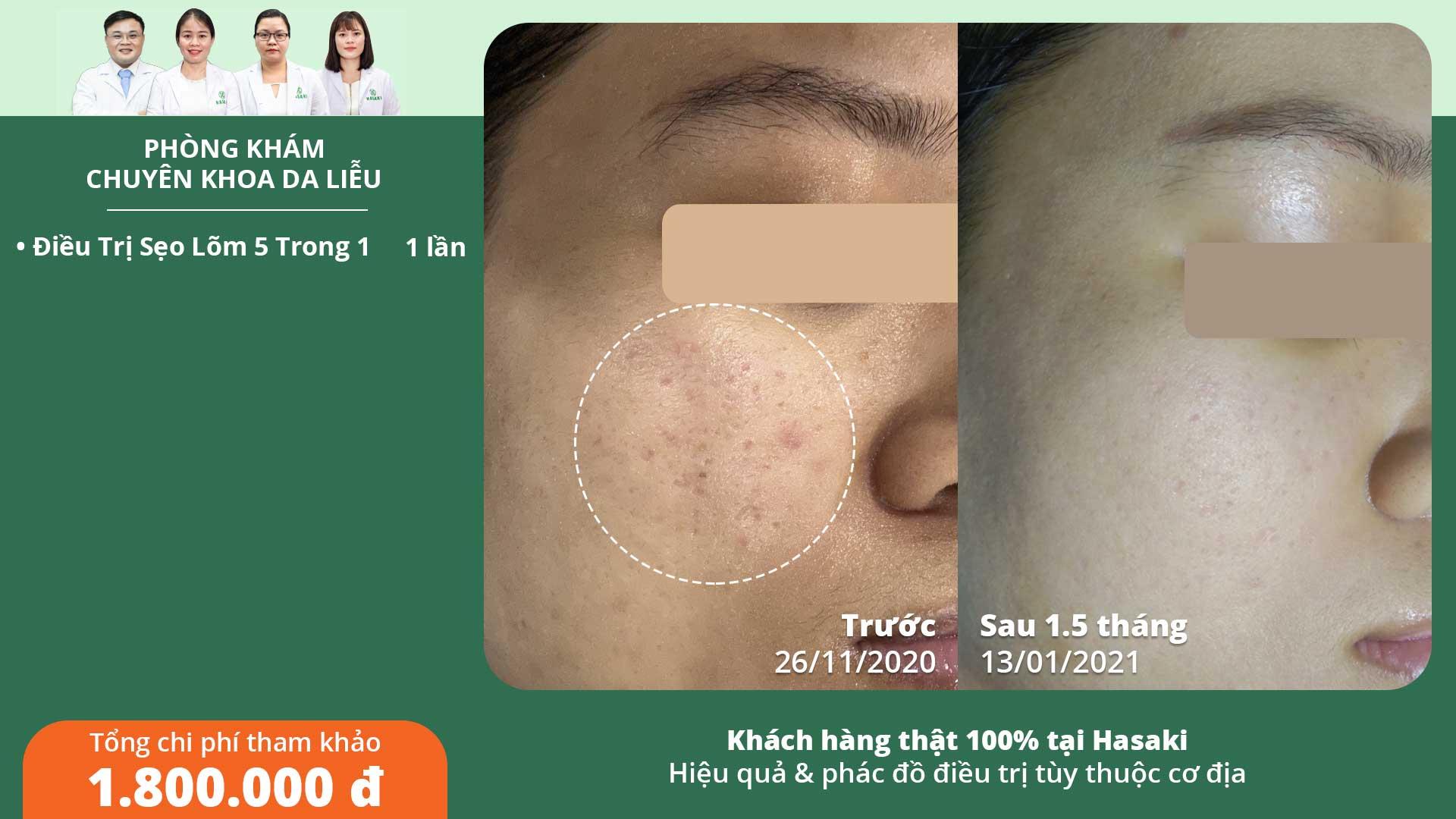 Khách hàng điều trị sẹo rỗ thực tế tại Hasaki Clinic & spa