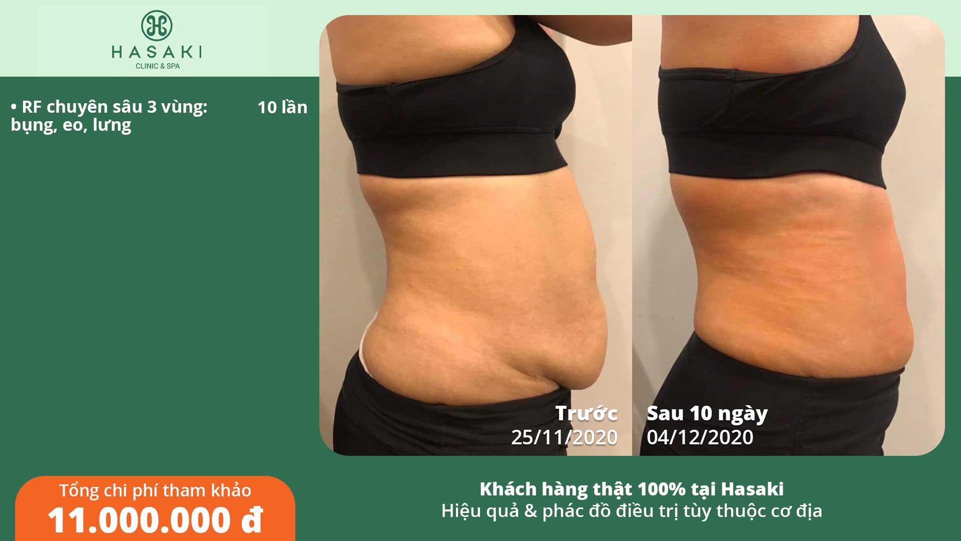 Khách hàng thực tế giảm béo bụng RF