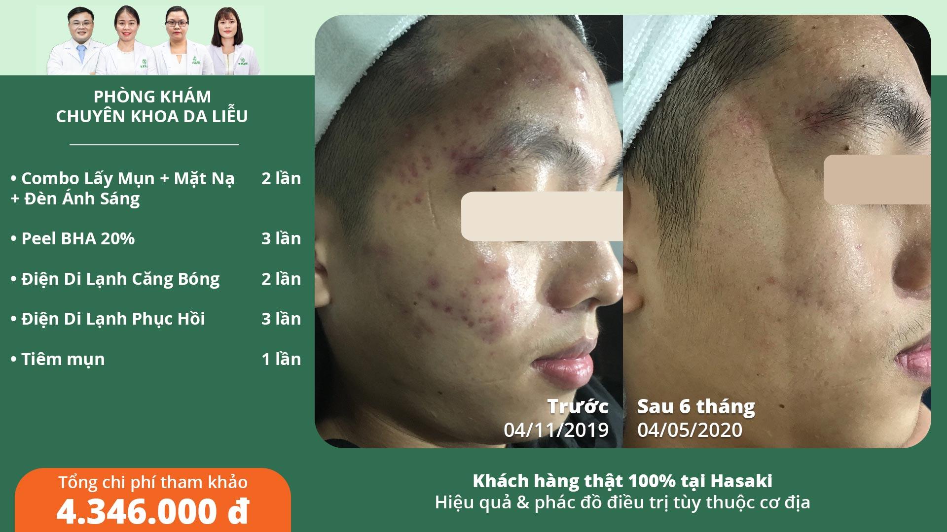 Khách hàng trị mụn thực tế tại Hasaki Clinic & Spa
