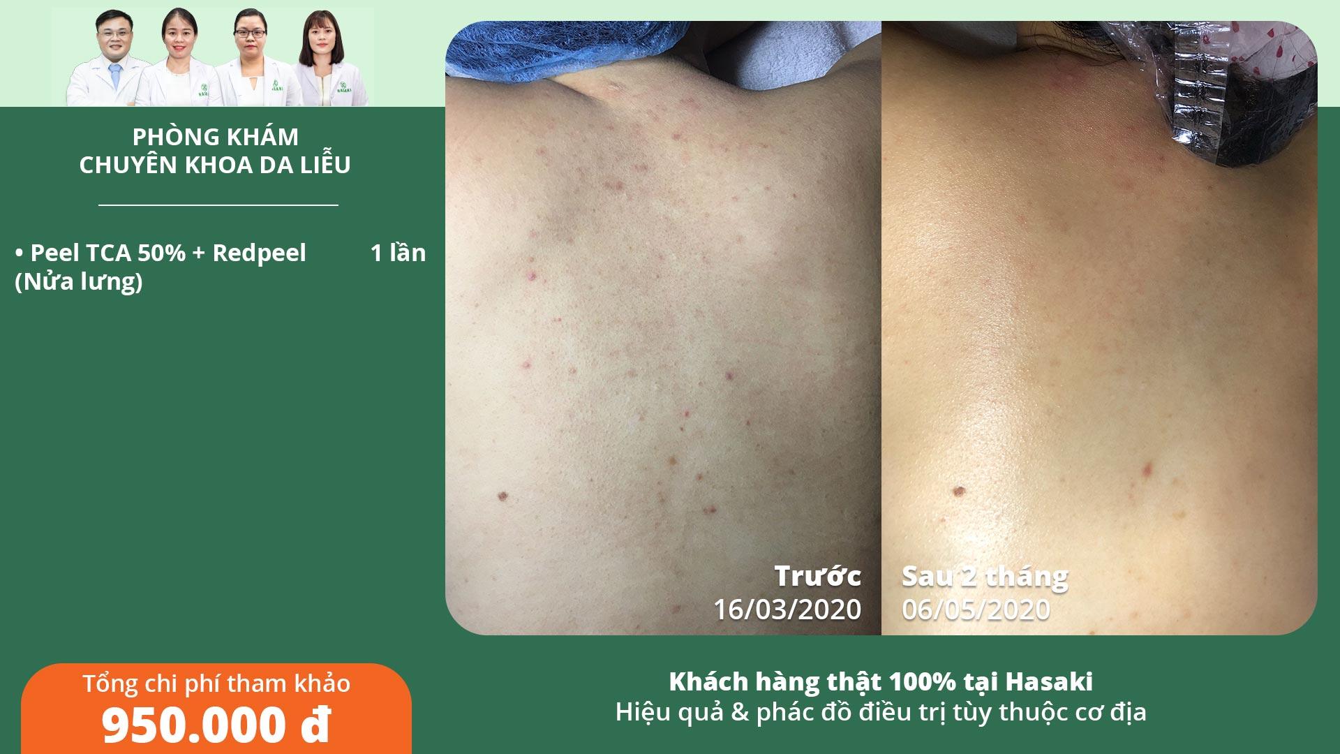 Khách hàng trị mụn lưng thực tế tại Hasaki Clinic & Spa