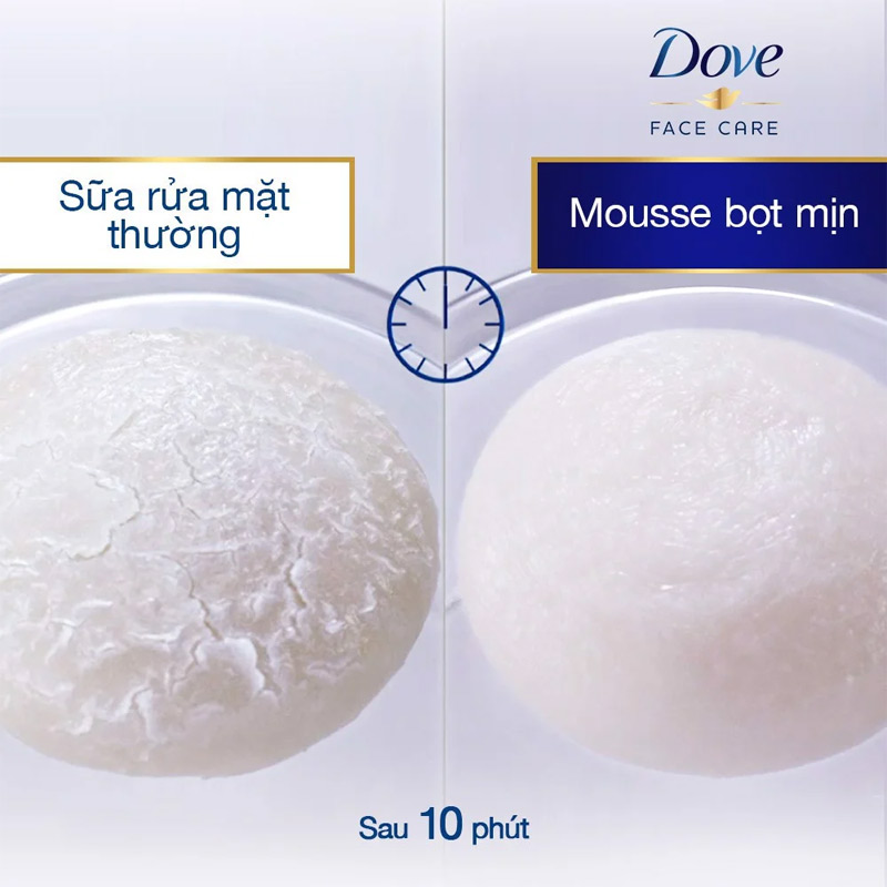 Dove Beauty Serum Pimple Care Foaming Cleanser Mild To Skin Less Tight Feeling 160ml