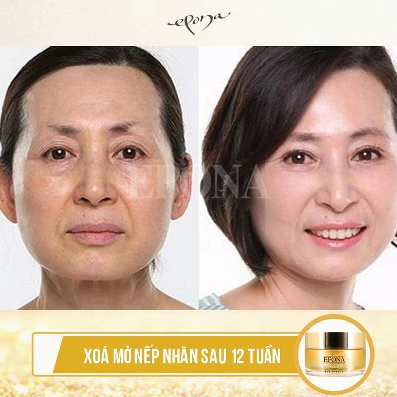 Kem Dưỡng Epona Ngừa Nám, Mờ Nhăn Chiết Xuất Hồng Sâm Red Ginseng Gold Whitening Cream 50ml