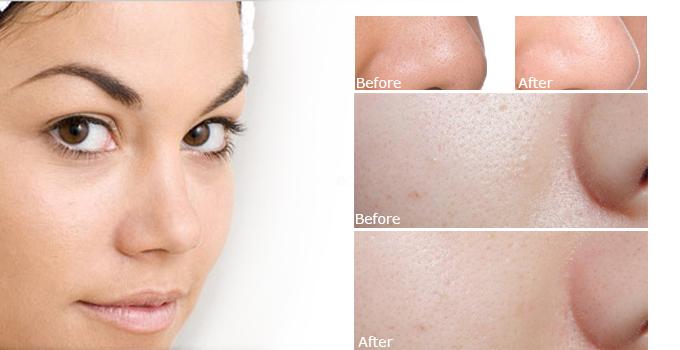 Tinh Chất Hỗ Trợ Se Khít Lỗ Chân Lông Paula's  Resist Daily Pore-refining Treatment 2% BHA 88ml