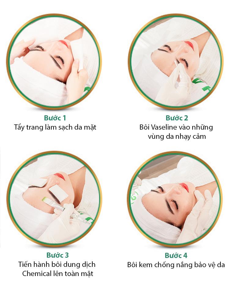 Peel da sinh học giúp bạn có một làn da mới căng tràn sức sống