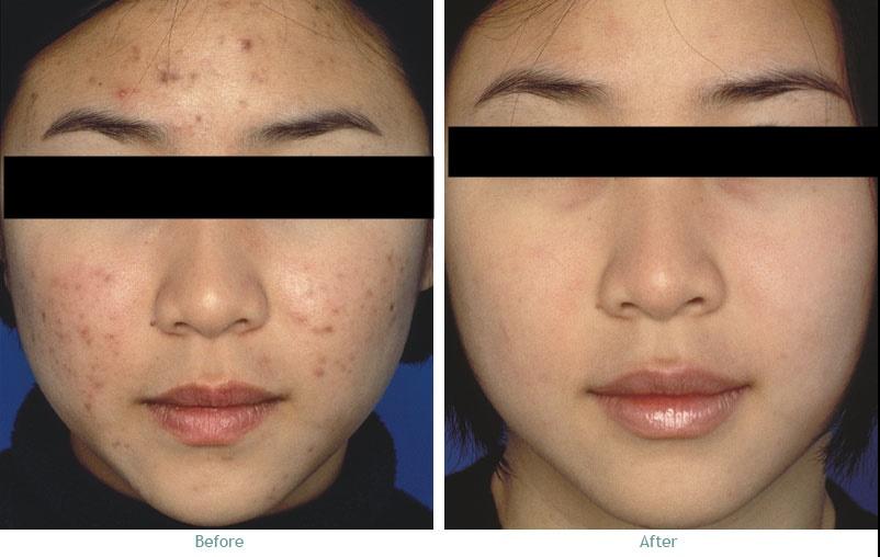 AQUA MESODERM công nghệ làm đẹp tiên tiến đến từ Ý, điều trị các bệnh về da như mụn, trị thâm và làm sáng da hiệu quả