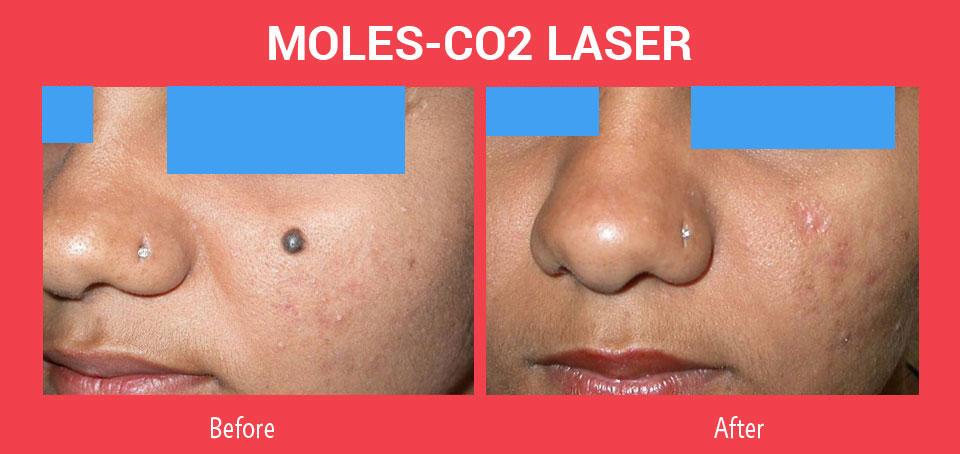 Laser Co2 Fractional điều trị nốt ruồi hiệu quả rõ rệt, nhanh chóng không để lại sẹo