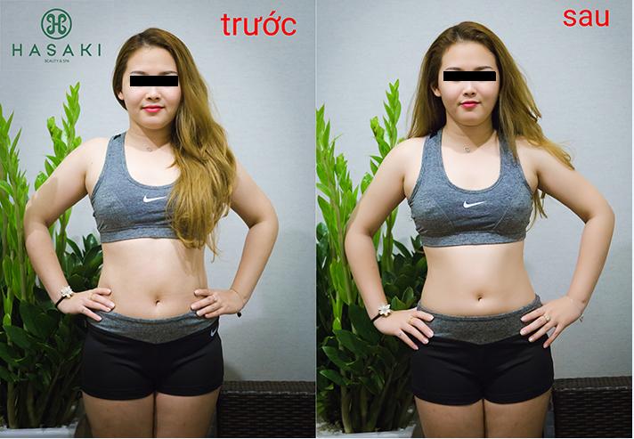 Giảm béo S-LINE chuyên sâu giúp vóc dáng thon gọn.