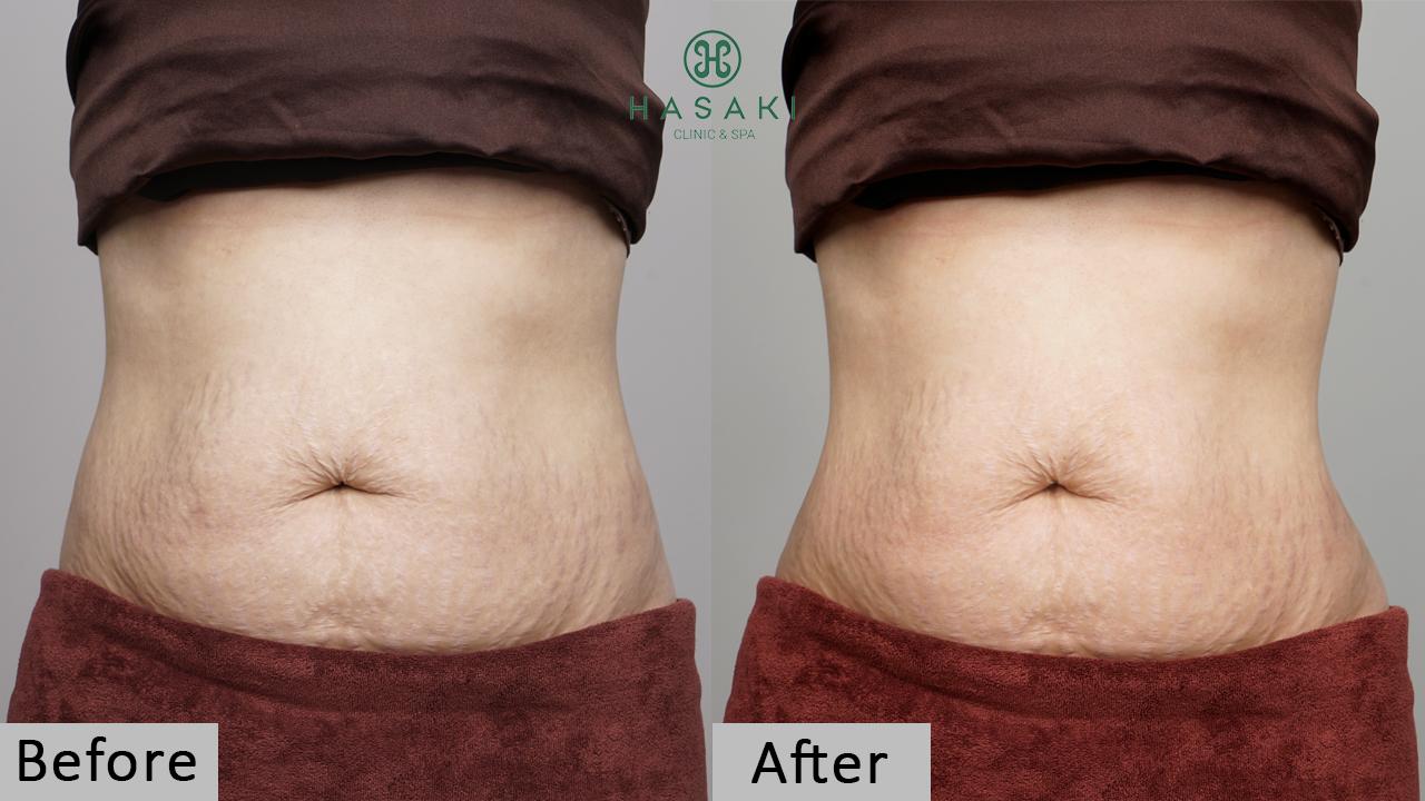 giảm béo s-line Công Nghệ Cavi-Lipo chuyên sâu giúp săn chắc da, thon gọn, và tạo form eo chuẩn. Hasaki chất lượng cho tất cả