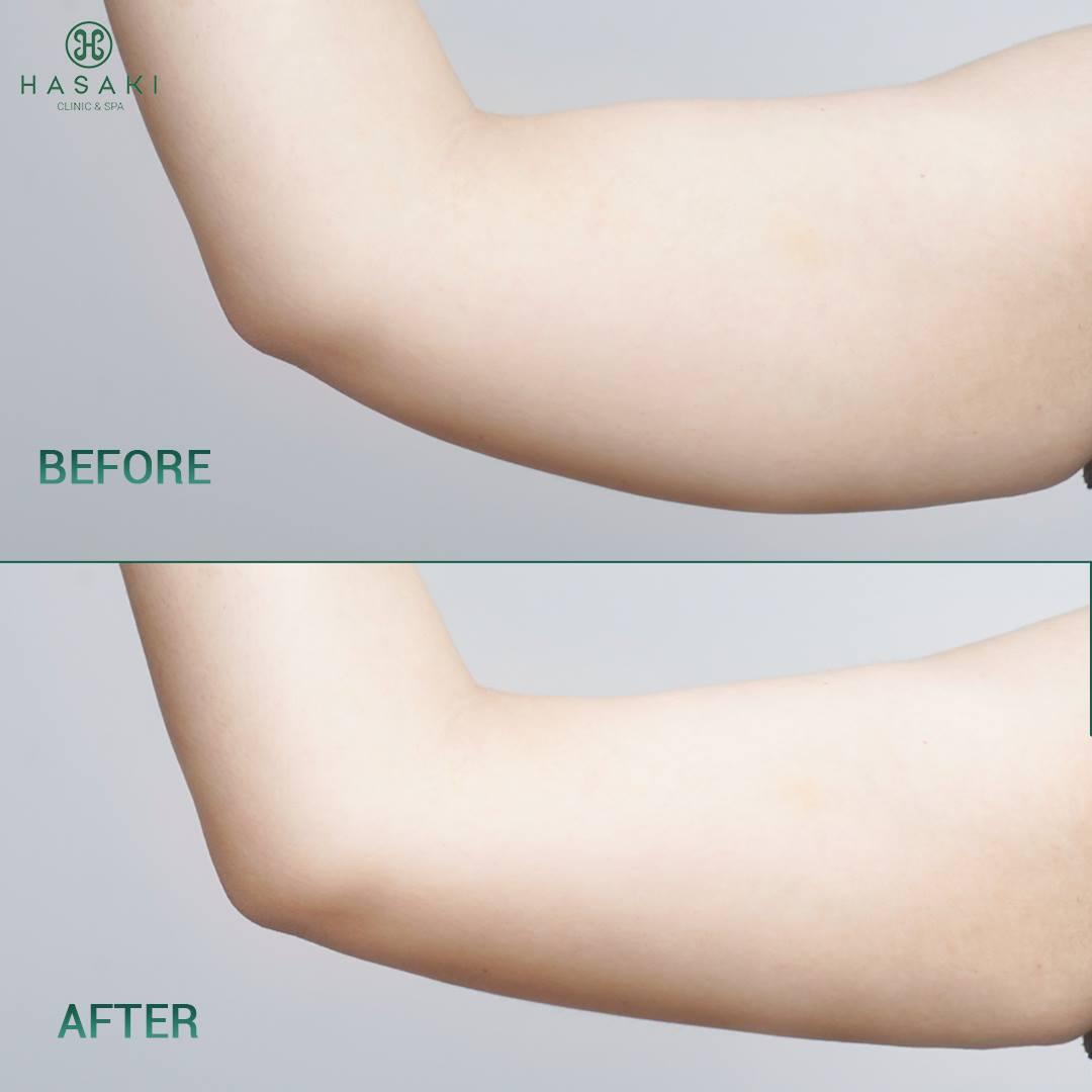 giảm béo s-line Công Nghệ Cavi-Lipo chuyên sâu giúp săn chắc da, thon gọn, và tạo form eo chuẩn.