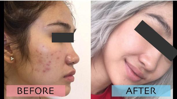 Peel da sinh học giúp bạn có một làn da mới căng tràn sức sống. Hasaki chất lượng cho tất cả