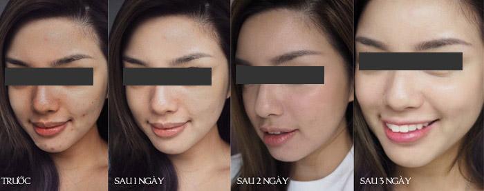 Peel da sinh học giúp bạn có được một làn da tươi trẻ, thay hoàn toan lớp da mới, căng bóng. Hasaki chất lượng cho tất cả
