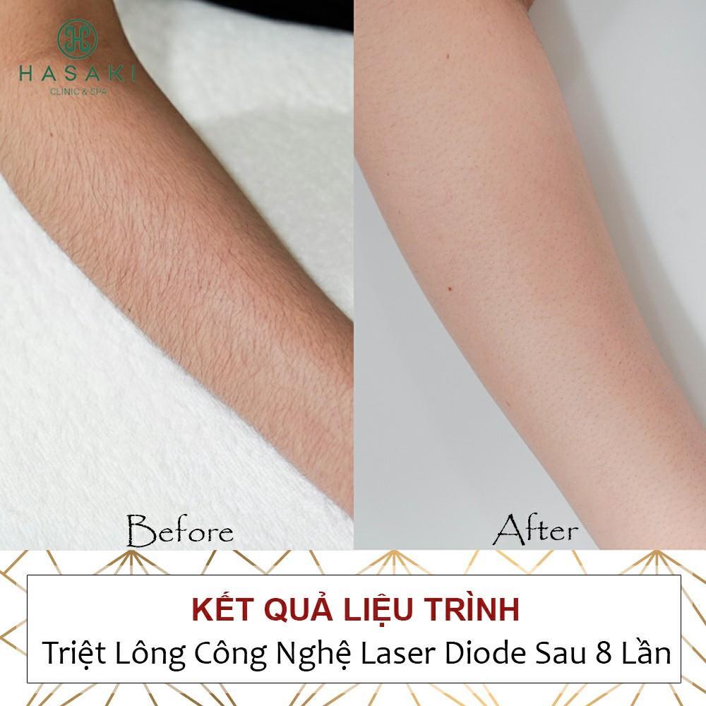 Triệt lông bảo hành 5 năm Công nghệ Laser Diode giúp bạn tự tin, giờ đây ''lông'' không còn là nỗi lo ngại.