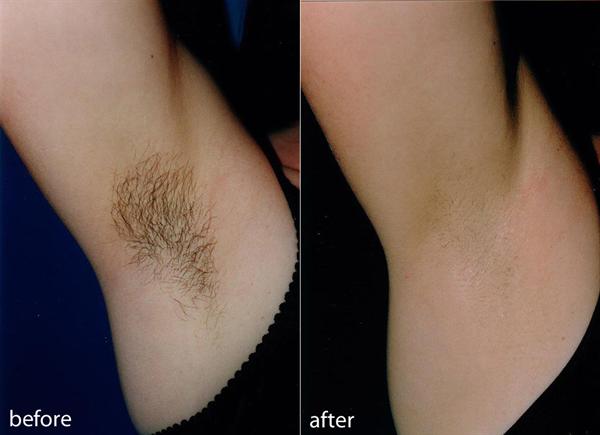 Triệt lông bảo hành 5 năm Công nghệ Laser Diode giúp bạn tự tin, giờ đây ''lông'' không còn là nỗi lo ngại