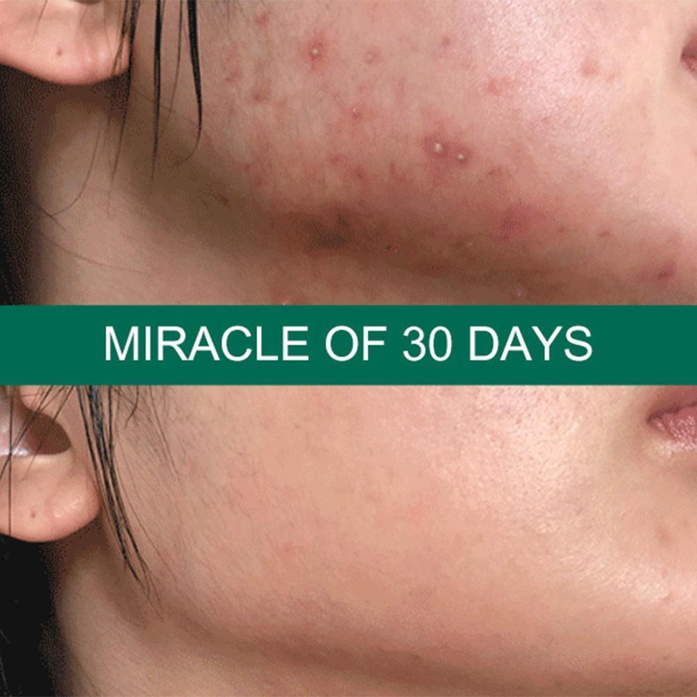 Hiệu quả Kem Dưỡng Some By Mi Giảm Mụn AHA-BHA-PHA 30 Days Miracle Cream