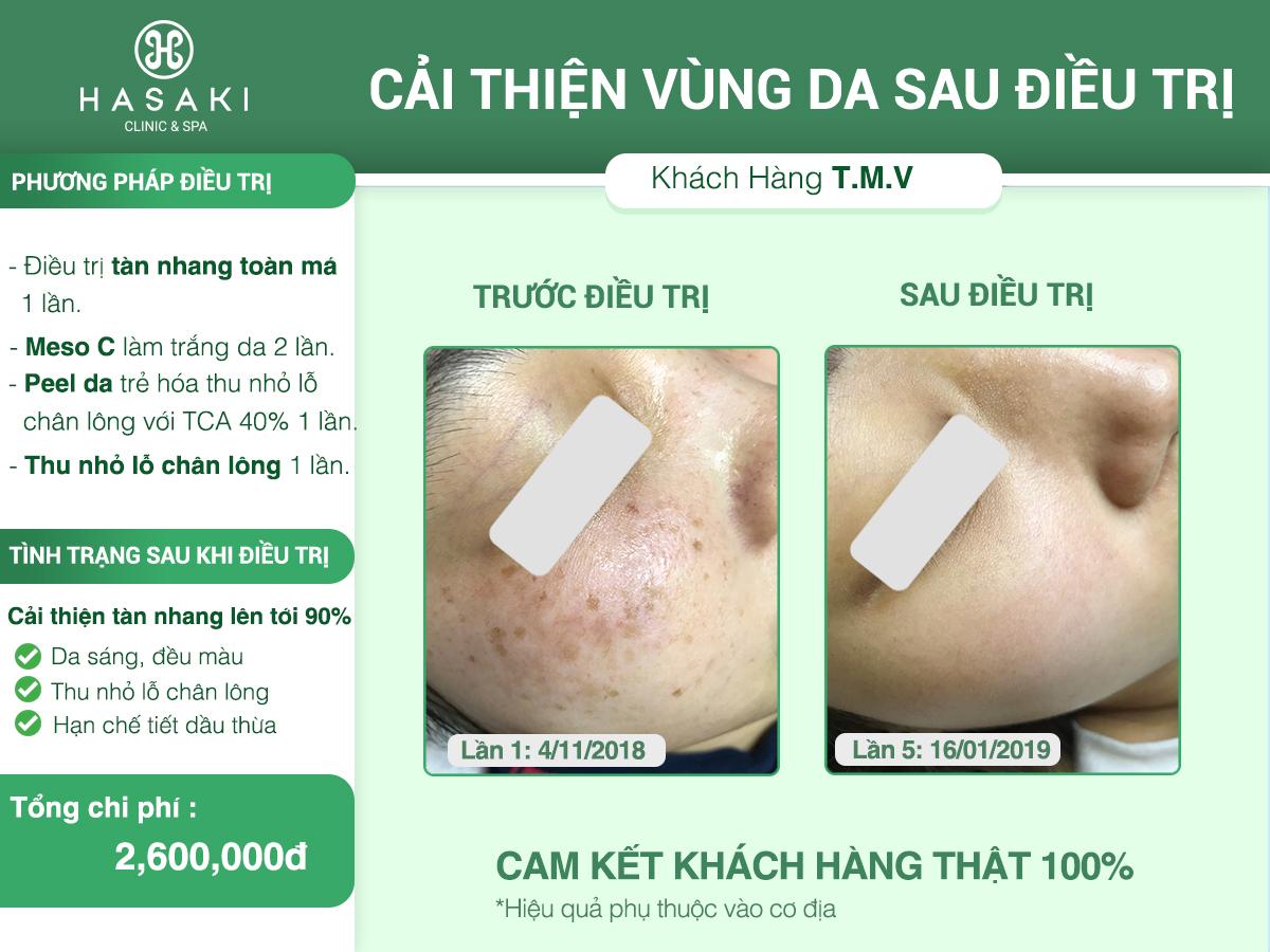 Điều trị nám với peel da hóa học