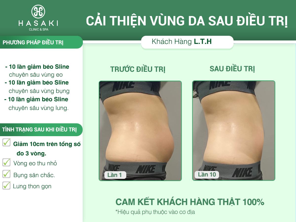 Giảm béo SLine chuyên sâu các vùng cam kết giảm bằng văn bản