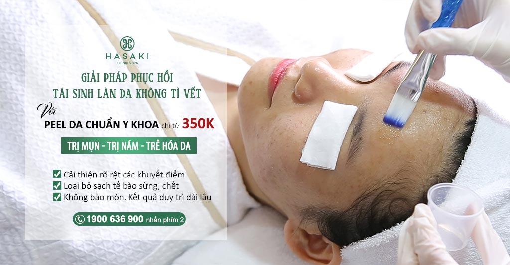 Chemical peel hỗ trợ trị mụn tại Hasaki Clinic & Spa