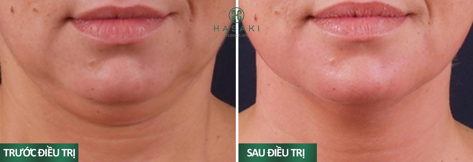 Hình ảnh khách hàng đã sử dụng Exilis Ultra 360 tại Hasaki Clinic & Spa