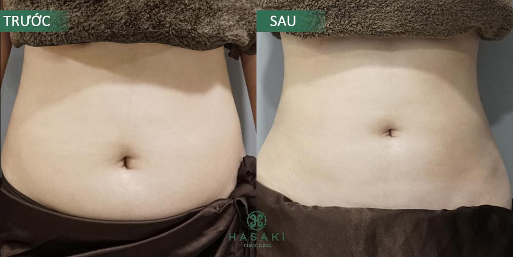 Giảm béo S-Line chuyên sâu tại Hasaki Clinic & Spa