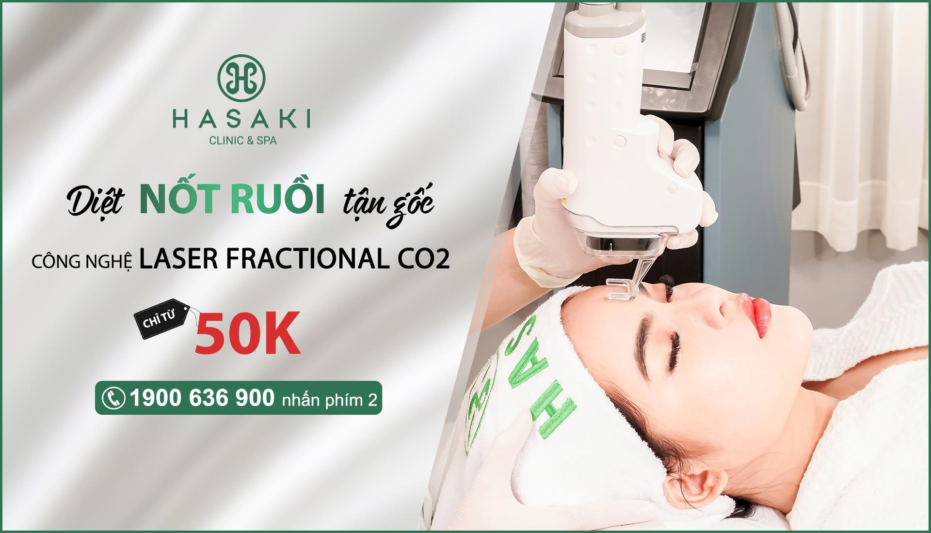 Điều trị nốt ruồi công nghệ Laser Fractional CO2 tại Hasaki Clinic & Spa
