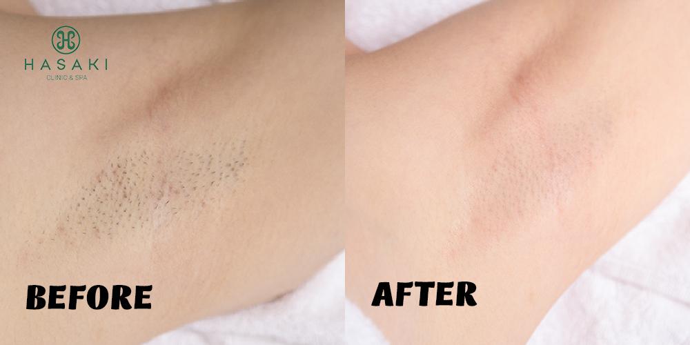 Triệt lông vĩnh viễn công nghệ Diode Laser tại Hasaki Clinic & Spa