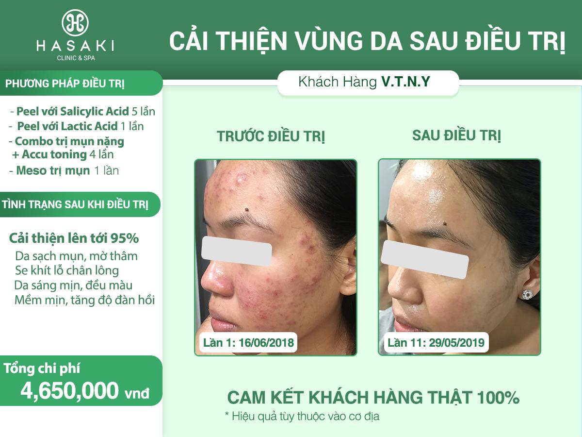 Điều trị mụn với peel da hóa học
