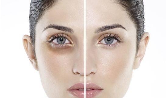 Kem Dưỡng Chống Thâm Vùng Mắt Wrinkle Plus Alpha Eye Zone Bright