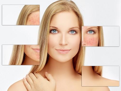 Kem Dưỡng Ẩm Calm Redness Relief Moisturizer (Normal To Oily Skin)